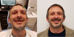 Patient before and after